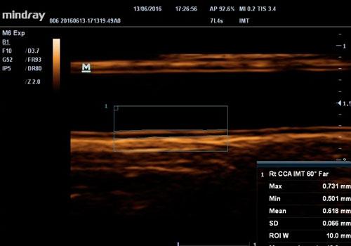 ecografo-M6 Sistema de Ultrasonido